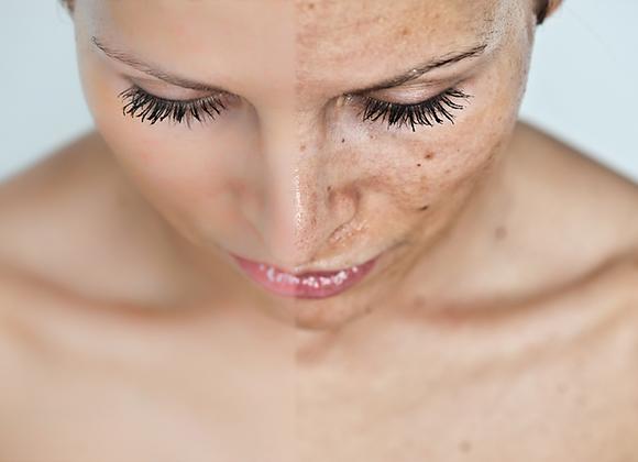 Zachte fruitzuurpeeling aangepast aan de noden van uw huid en gelaatsverzorging