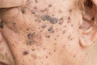 Closeup of age spots skin (liver spots)
