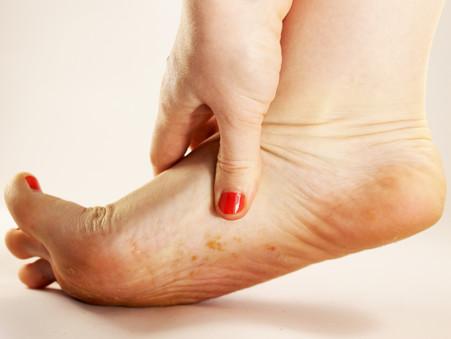 Weet je dat in 99% van de gevallen de schimmel start op de huid en later de nagel aantast?