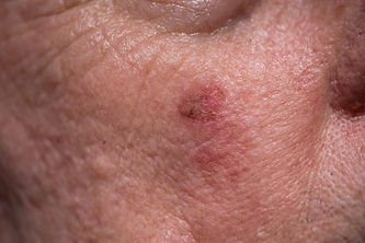 Red crusty lesions of actinic keratosis