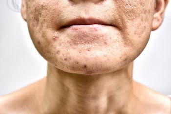 Skin problem with acne diseases, Close u