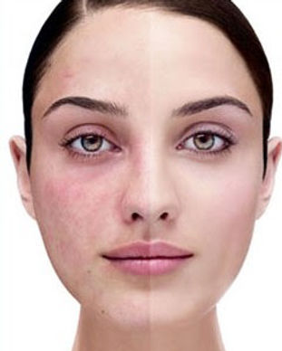 Treatment of Acne Rosacea sandiegopurple
