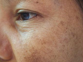 Closeup dark spots melasma pigmentation