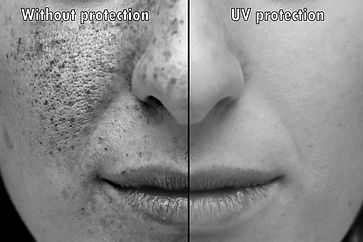 Ultraviolet photograph of the face expos