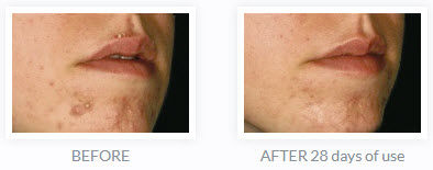 Clear Up Acne Management_before-after.jp