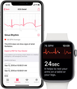 iphone-apple-watch-ecg