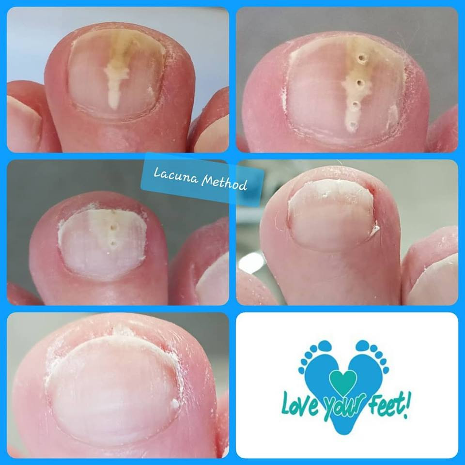 White, yellow or brown crumbly toenails? Could be fungal nail infection. The photo illustrates treatment with Lacuna Method over 10 months = one cured healthy nail!