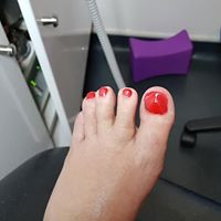 From this.....to this! Pedisafe medical model toenail reconstruction with Gelous Red is for Roses coour. Very Christmassy & available now
