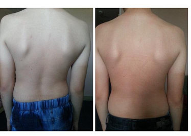 Scoliosis: before and after six BFM sessions.