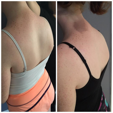 Scoliosis: significant improvement after just fiveBFM sessions.