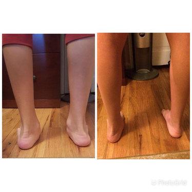 Flat feet. 3 months of BFM