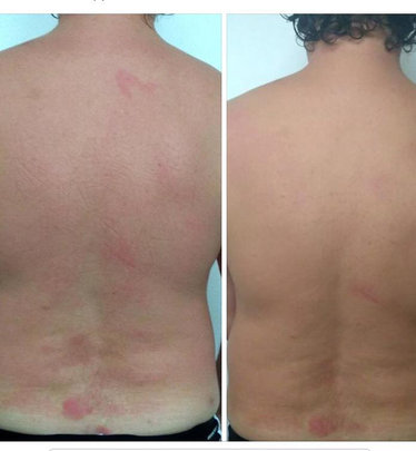 45 minutes of BFM therapy helped visibly reduce the allergy!