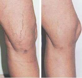 Varicouse veins gone completely!