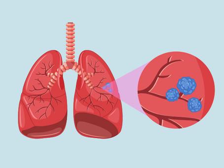 6 ejercicios para ayudar a rehabilitar tus pulmones después de tener Covid-19