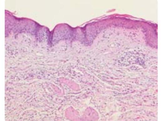 Dermatitis Herpetiforme de presentación atípica