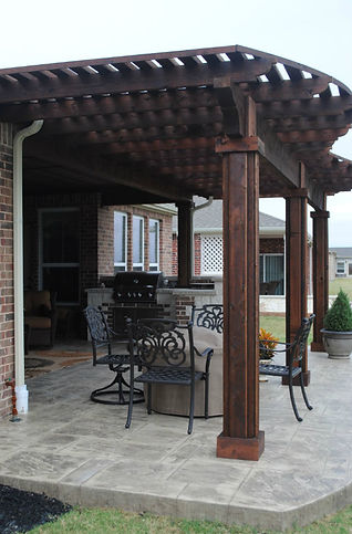 Custom Kitchen, Pergola and Patio