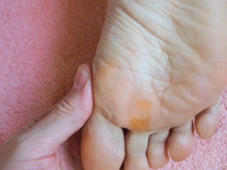 Comment enlever un durillon sous le pied ? (conseils et traitements)