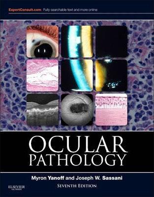 Ocular Pathology ( Expert Consult Title: Online + Print )