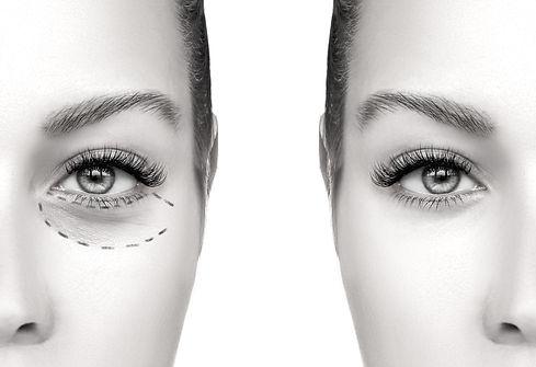 Chirurgia estetica - Lifting