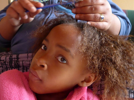 All hair relaxers studied are damaging to skin, risking hair loss