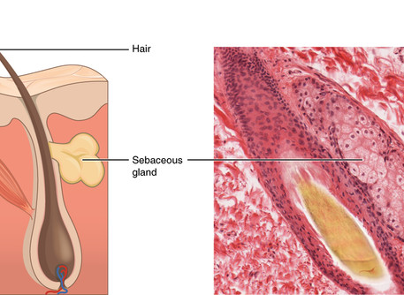 Study of sebaceous gland stem cells reveals insights into abnormal cell growth