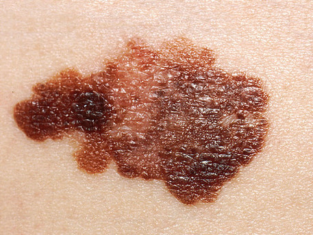 Melanoma: Single dose of PD-1 inhibitor may put patients in remission, and predict outcomes