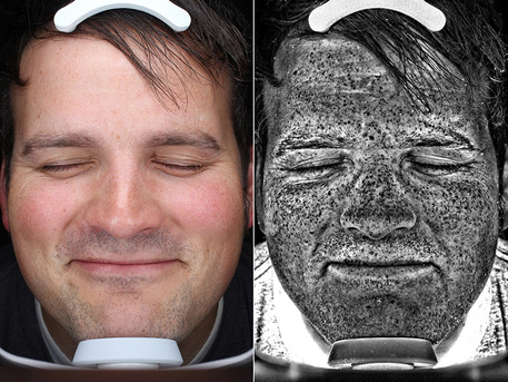 UV photos of sun damage promote protection through fear