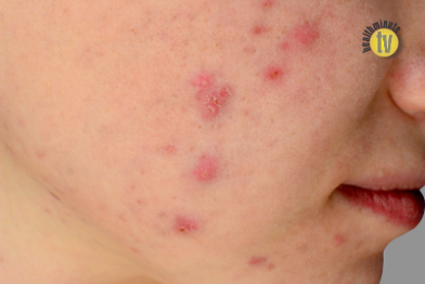 Isotretinoin acne treatment does not increase risk of contracting Covid-19