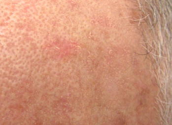 Use of ingenol mebutate may increase risk of skin cancer