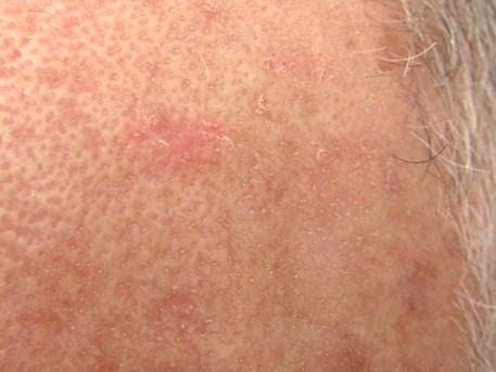 Use of ingenol mebutate may increase risk of skin cancer