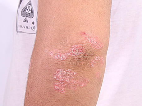Systematic review supports link between psoriasis, IBD
