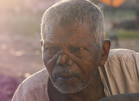 Update: Modern-day cases of leprosy
