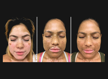Skin colour of patients with vitiligo restored using arthritis medication, UVB light