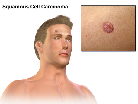 Azathioprine associated with cutaneous SCC diagnosis
