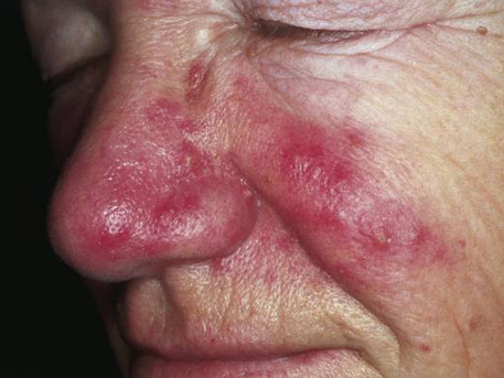 Recommendations for avoiding rosacea flares during the Covid-19 pandemic