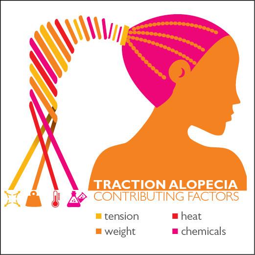 Traction Alopecia contributing factors guide courtesy of John Hopkins University