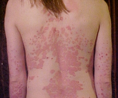 Blocking IL-36 appears safe, effective for treating plaque psoriasis