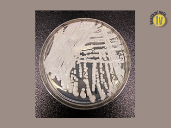 Combination therapy may be effective against drug-resistant skin fungus