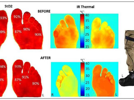 New insole could prevent diabetic foot ulcers