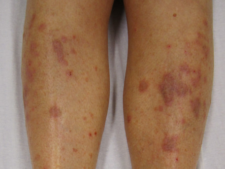 Inflammatory pathway in lichen planus identified, possible target for JAK inhibitors