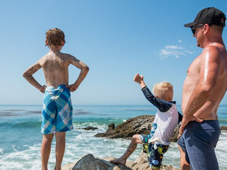 Four ways to get a sunburn, and six ways to cure the damage