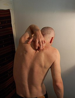 Periostin activates itch response