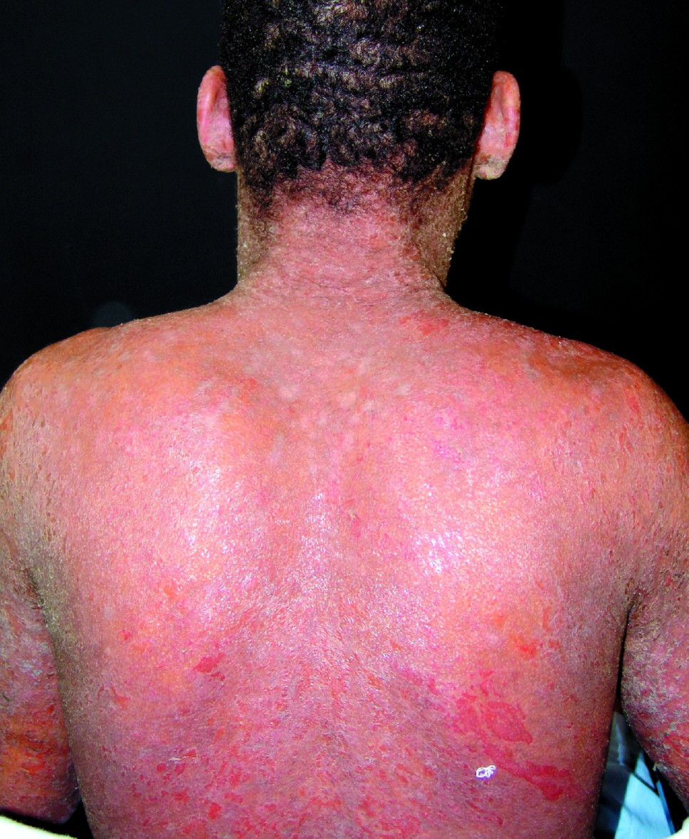 Clinical example of Fogo-Selvagem erythroderma. Photo courtesy the Autoimmune Blistering Clinic, Department of Dermatology, University of Sao Paulo, Brazil