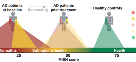 Objective skin microbiome measure for evaluating AD