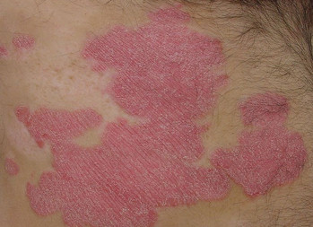 Study finds topical treatment improves chronic plaque psoriasis