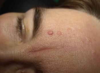 Hydrogen peroxide 40% safe for facial seborrheic keratoses