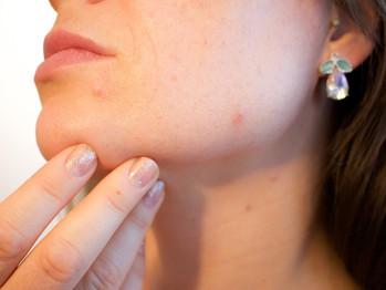 Metformin improves PCOS-related acne