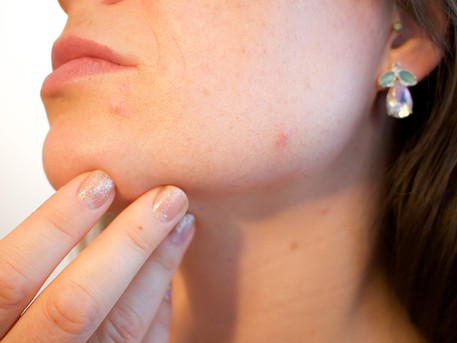 Metformin improves PCOS-related acne