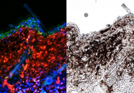 UV ray triggered chromatin-remodelling factor gene has potential role in melanoma