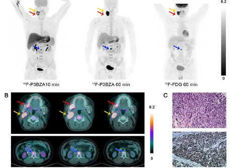 New tracer may improve PET scan detection of melanoma